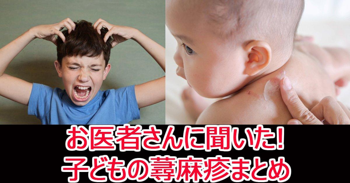 kodomozinmashin.jpg?resize=300,169 - 【お医者さんに聞いた】子どもの蕁麻疹で絶対に知っておくべき5つの疑問