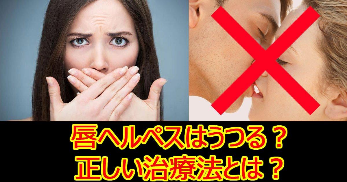 kutibiruherupesu.jpg?resize=1200,630 - 【お医者さんに聞いた】口唇ヘルペスってうつるの?症状・感染経路・治療法まとめ