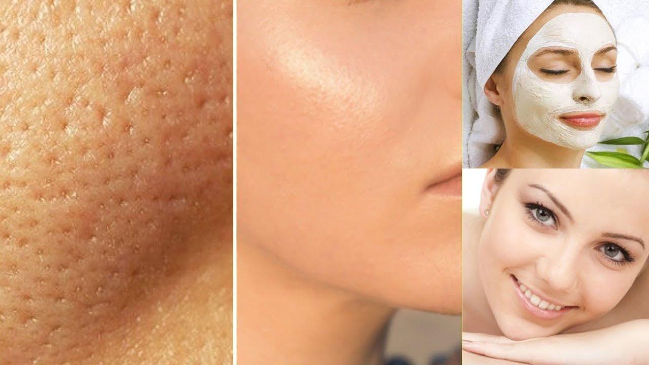 maxresdefault 16.jpg?resize=636,358 - Receita de esteticista para fechar poros e deixar pele lisinha leva só dois ingredientes