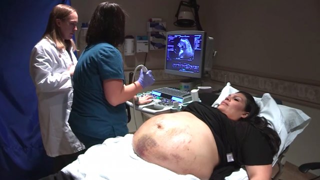 Mom thinks she's carrying twins or triplets—but what doctors say leaves her utterly surprised