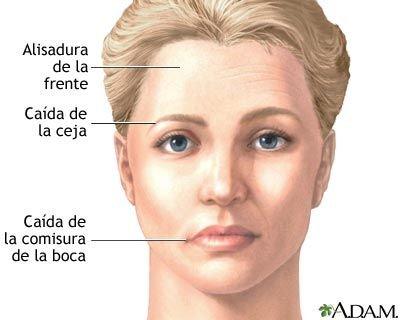 paralisis-facial