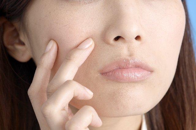 肌荒れ에 대한 이미지 검색결과