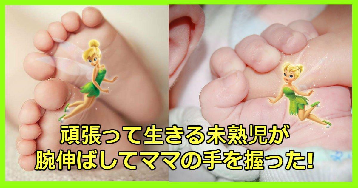 small bb.jpg?resize=1200,630 - 死ぬ危機超えた「400g」未熟児は母親ぬくもりを感じて手を握った