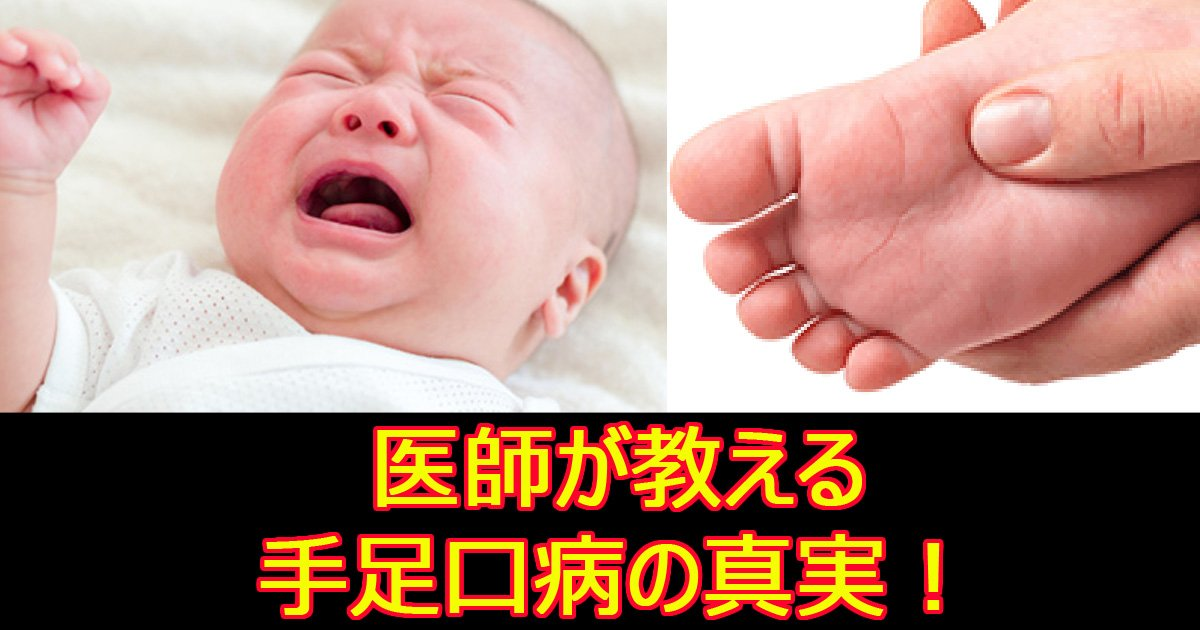 teshikutibyuo.jpg?resize=1200,630 - 【お医者さんに聞いた】手足口病の症状の特徴、他の病気との見分け方