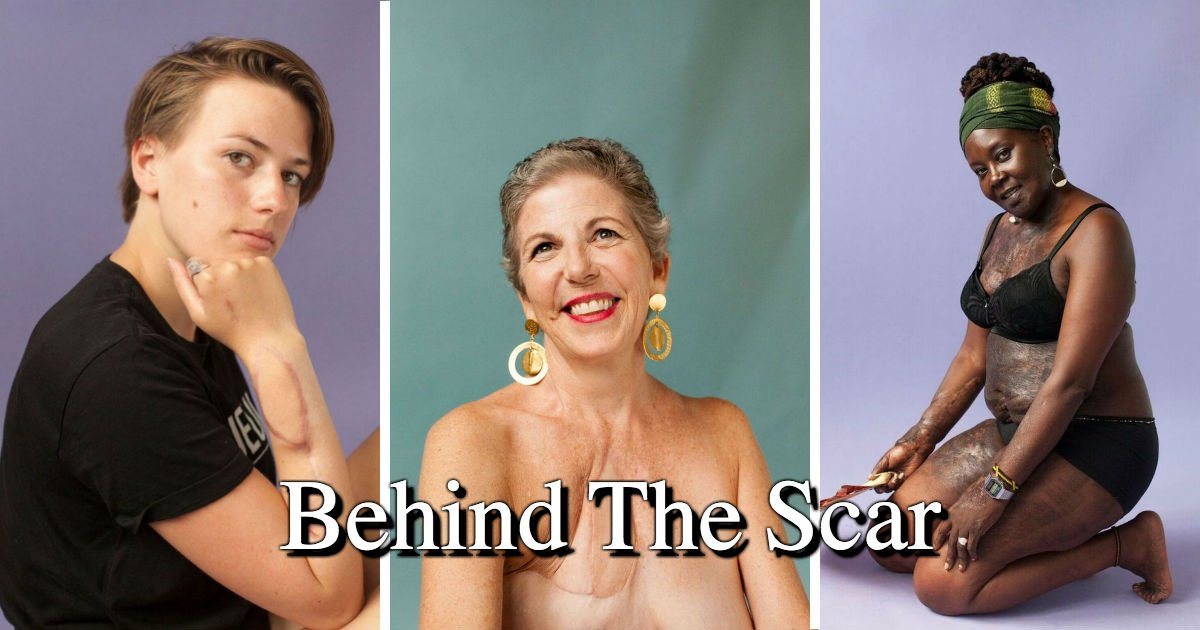 "untitled 47.jpg?resize=648,365 - These Dauntless Women Strip Down And Boldly Shared Their Stories Of ""Behind The Scars"""