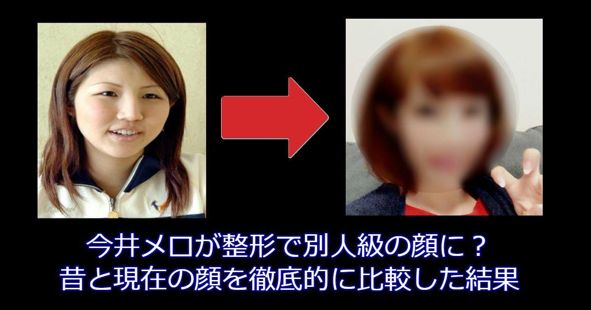 0307.jpg?resize=1200,630 - 今井メロが整形で別人級の顔に?昔と現在の顔を徹底的に比較した結果