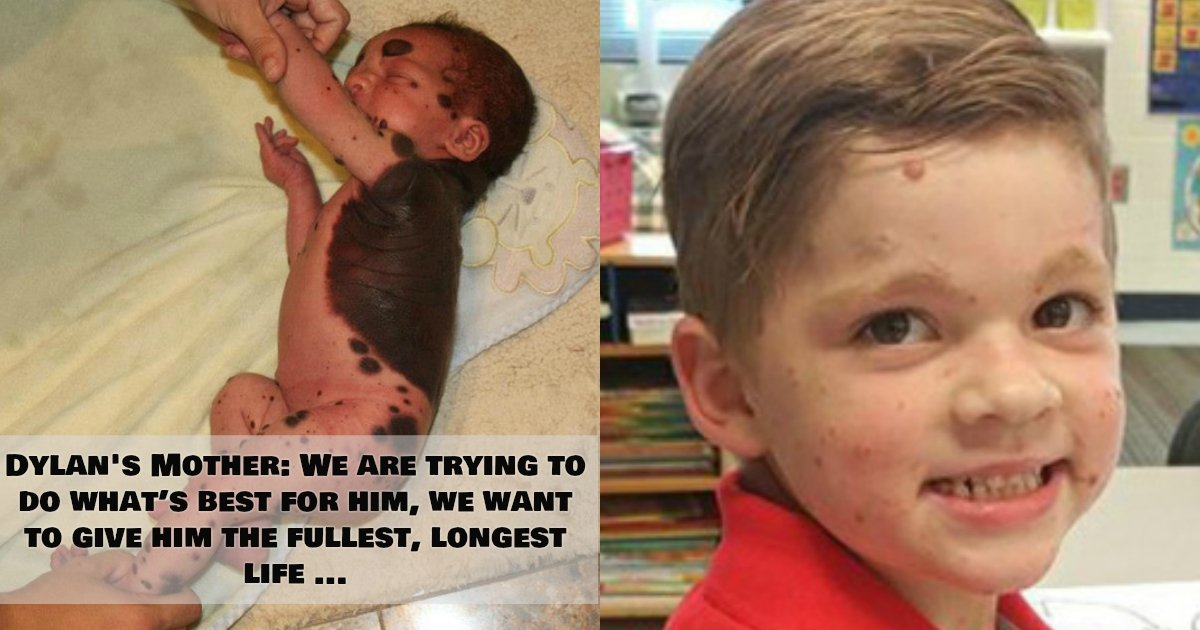 1 334.jpg?resize=1200,630 - Boy Born With A Giant Mole Forced To Undergo 26 Surgeries