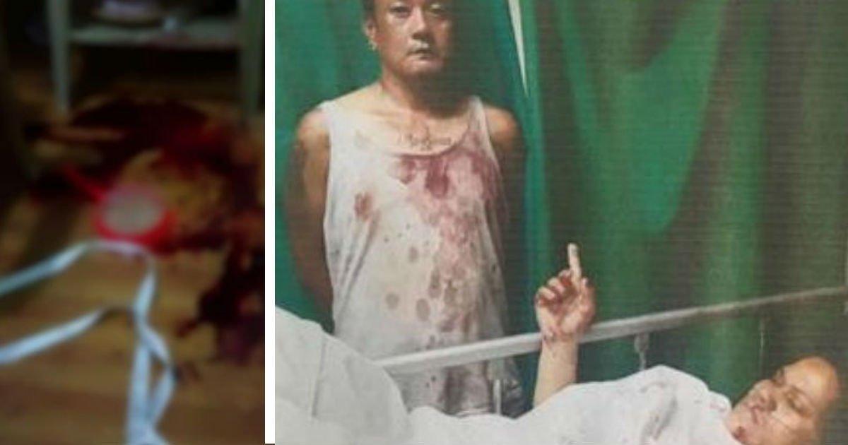 231442.jpg?resize=300,169 - 칼에 46차례 찔리고 '죽은 척'해서 겨우 살아난 여성, 경찰 앞에서 범인 지목