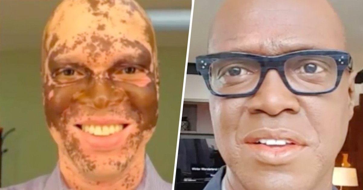 3ec8db8eb84ac 3.jpg?resize=412,275 - TV Reporter Who Started Turning White Saved His Career By Painting His Face Every Day