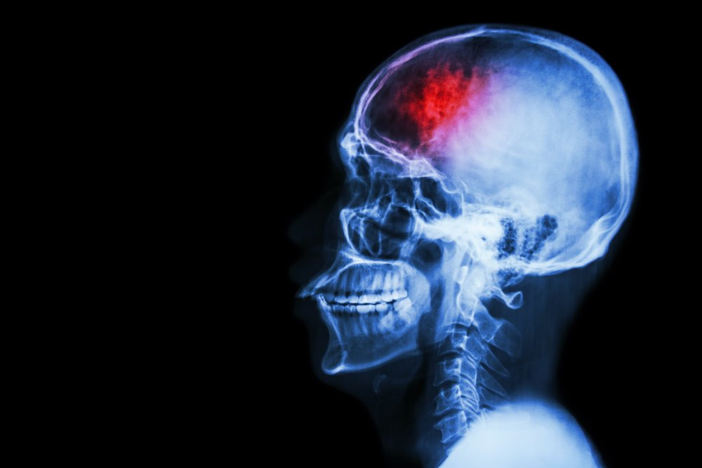 """""""Stroke"""" (cerebrovascular accident). Film x-ray skull lateral with stroke and blank area at left side"""