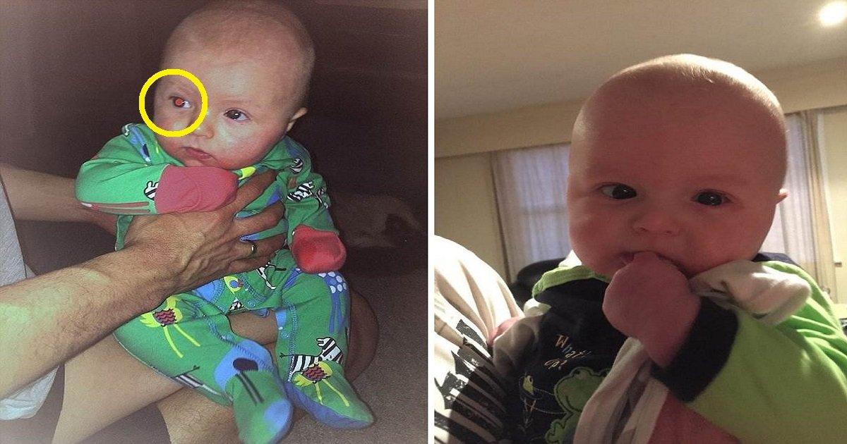 943jgt - Mamá toma fotos de su hijo y nota un extraño resplandor en su ojo, los médicos dicen que el ojo debe ser extirpado