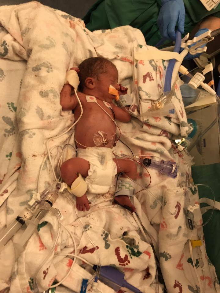 18343252 1487540124.3778 funddescription - Hospital Employee Refused To Give Up On This Critically Ill Newborn And His Efforts Paid Off