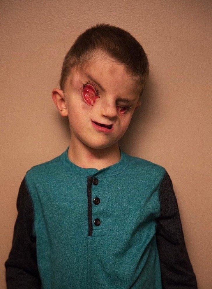Captura de pantalla 2018 03 08 a las 12.07.50 p.m. - El niño que nació sin ojos ha luchado contra el bullying, su historia ha conmovido a miles de usuarios