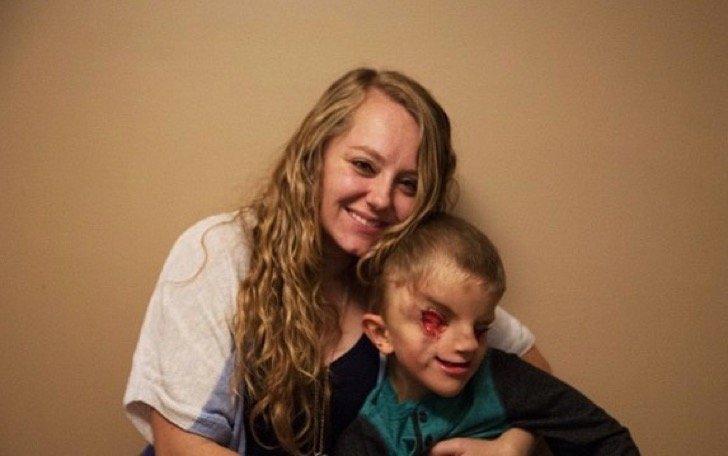 Captura de pantalla 2018 03 08 a las 12.08.24 p.m. - El niño que nació sin ojos ha luchado contra el bullying, su historia ha conmovido a miles de usuarios
