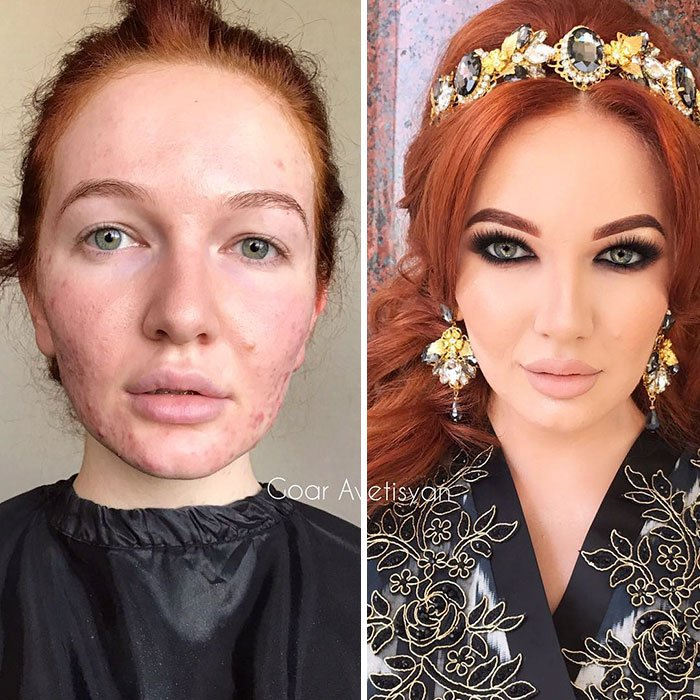 Harem Look On A Model With Acne-Prone Skin