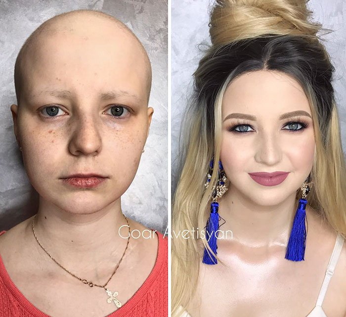 Right After The Transformation Julia Went To The Hospital For Her Chemo Treatment. She And Her Husband Were Amazed With The Results