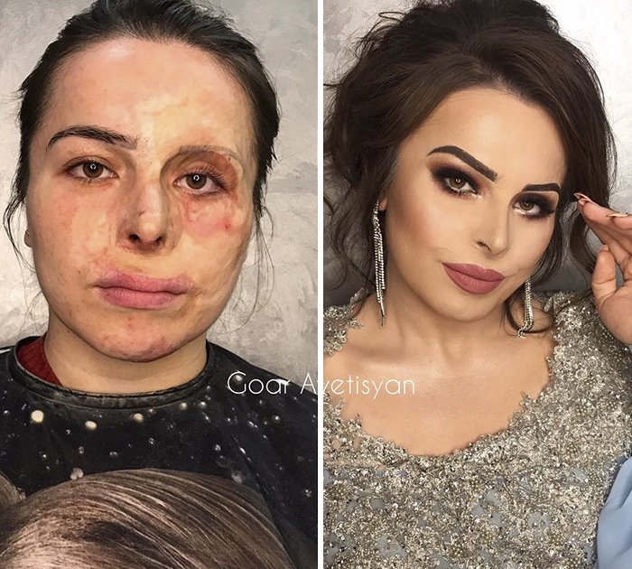 Jamilya From Dagestan Got Severely Burned When She Was Just 2,5 Years Old. Goar Paid For The Tickets From Dagestan So That She Could Have Her Confidence Boosted