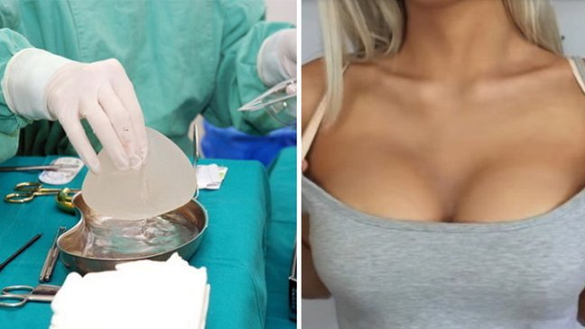 article thumbnail 9 1.jpg?resize=1200,630 - 貧しい女性たちに40万円の「豊胸手術」を無料施術してくれる都市