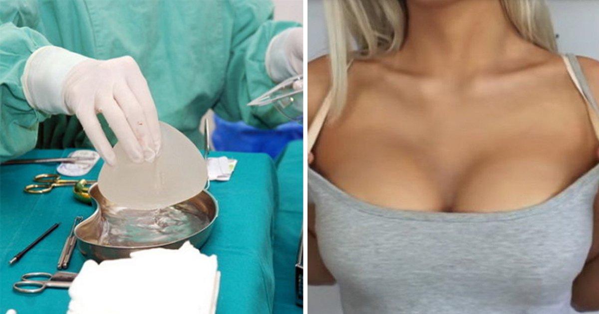 article thumbnail 9.jpg?resize=300,169 - 가난한 여성들에게 400만원짜리 '가슴 수술' 공짜로 시켜주는 도시