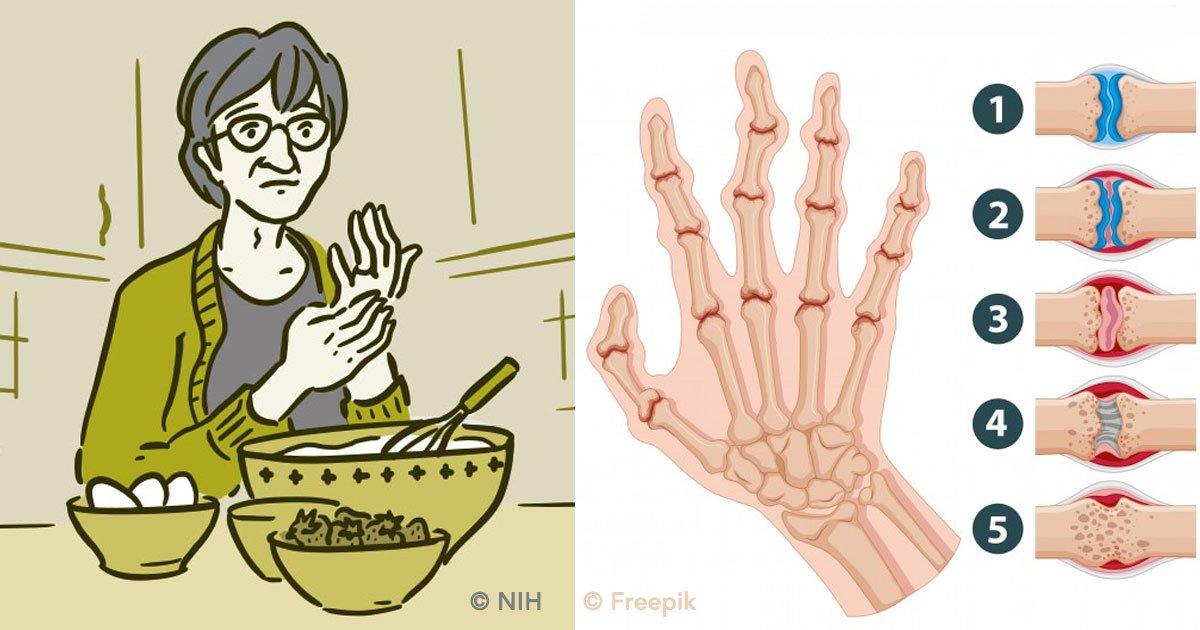 cover 46 - 8 síntomas tempranos de artritis reumatoide