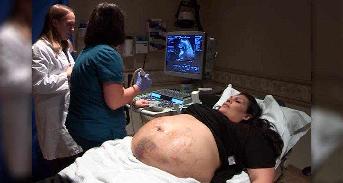 cover 4emb.png?resize=366,290 - Una mujer embarazada tiene moretones en todo su vientre... Luego de ver el ultrasonido, el médico quedó petrificado.