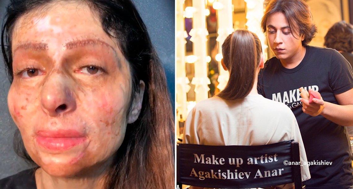 cover 4make - Este maquillador transforma el rostro quemado de una mujer que sufrió un accidente cuando tenía 11 años