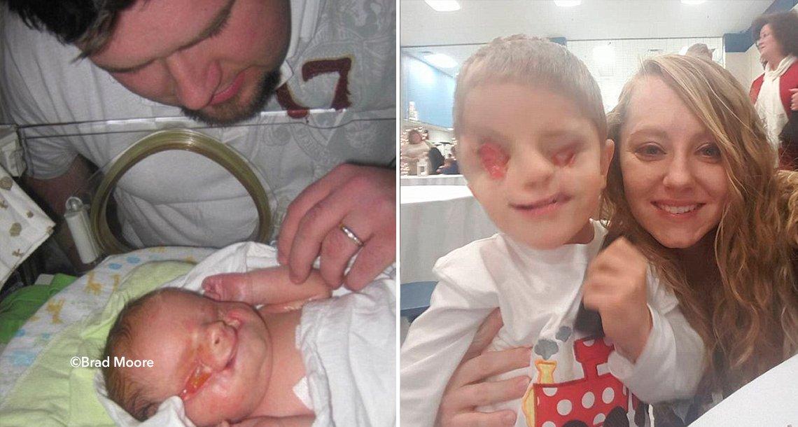 cover 4ojos.png?resize=412,232 - Este niño nació sin ojos y está luchando contra el bullying, su historia ha conmovido a miles de usuarios