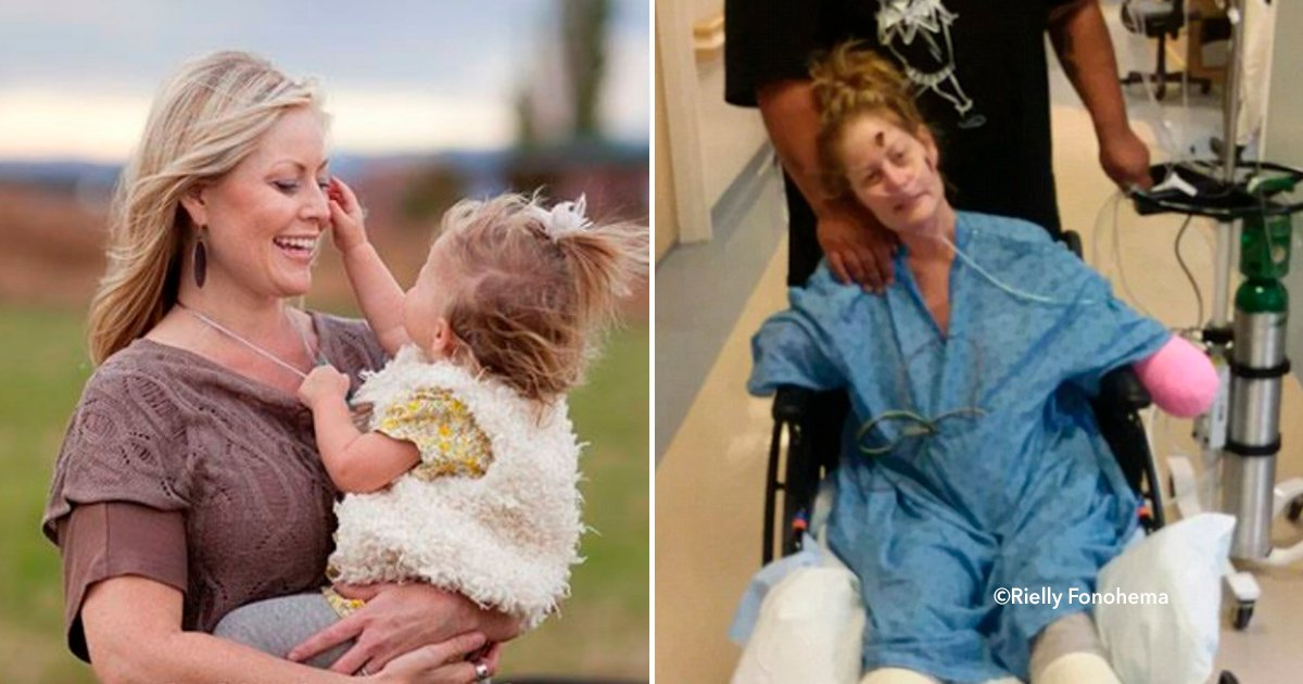 cover22piernas.jpg?resize=1200,630 - Foi ao médico por causa de um resfriado e acordou sem braços e pernas!