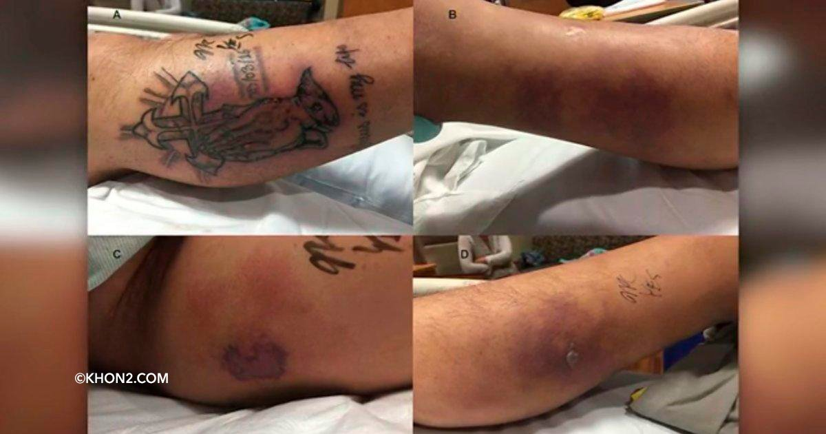 cover22tatu.jpg?resize=648,365 - Un hombre falleció por meterse al mar con un tatuaje recién hecho