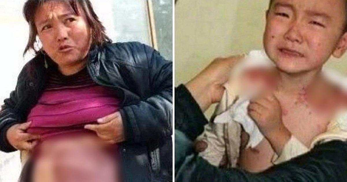 ec8db8eb84a4ec9dbc ebb3b5eab5aceb90a8 72 - 아픈 딸 '피부 이식' 해주느라 온몸에 '상처투성이'가 된 엄마