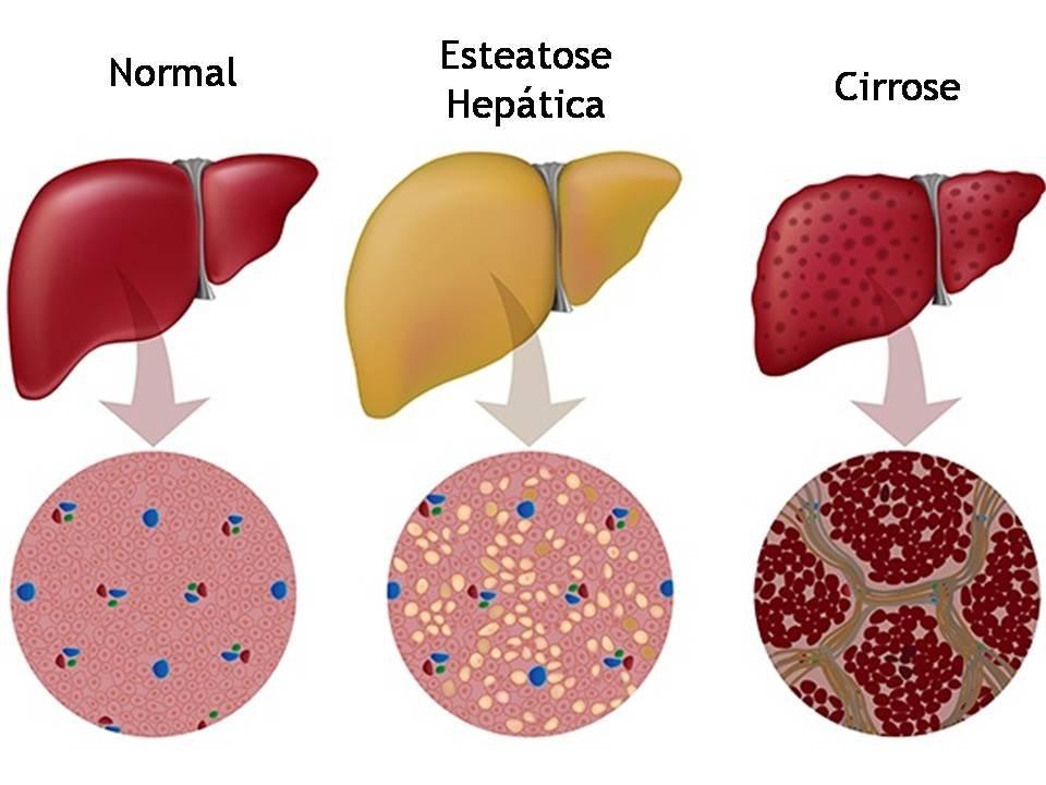 img 285451 20170317154439 300x225 - Você bebe toda a semana? - 6 sinais comuns de danos no fígado que as pessoas ignoram