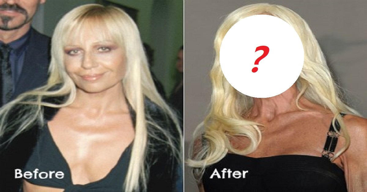 j34 - Top Celebrities That Underwent Terrible Plastic Surgeries