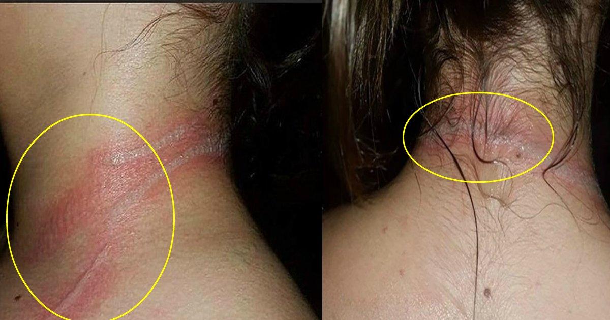 jackie featured - Menina de 13 anos sofre queimaduras de segundo grau por usar celular que estava carregando