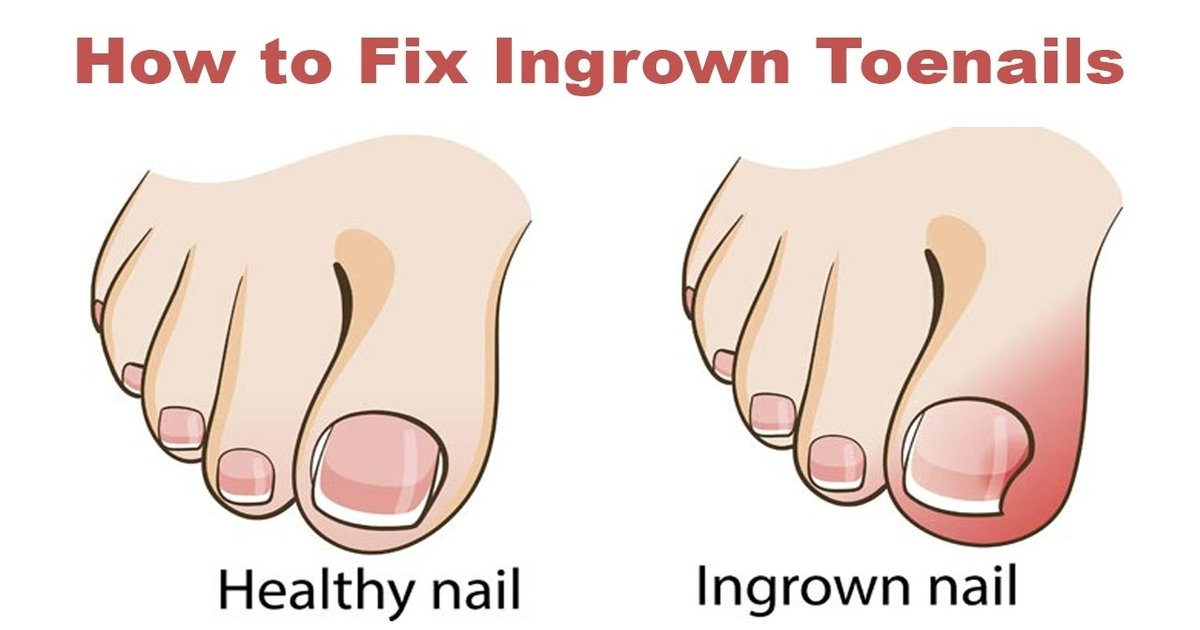 nailthumb2.jpg?resize=1200,630 - Steps on How to Get Rid of an Ingrown Toenail without Surgery- DIY