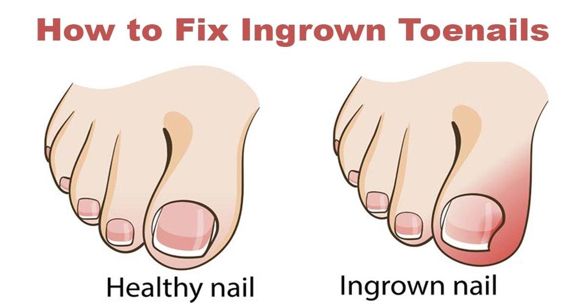 nailthumb2 - Les étapes pour se débarrasser d'un ongle incarné sans chirurgie