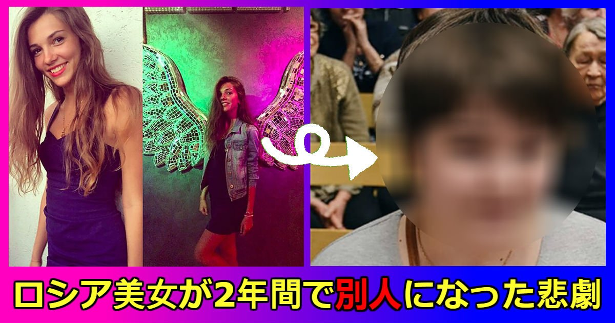 russia girl 1 - 【映像あり】超絶ロシア美女が2年間で「別人」に変わった悲劇の理由は? 激太りに視力喪失、友達も彼氏も失った彼女