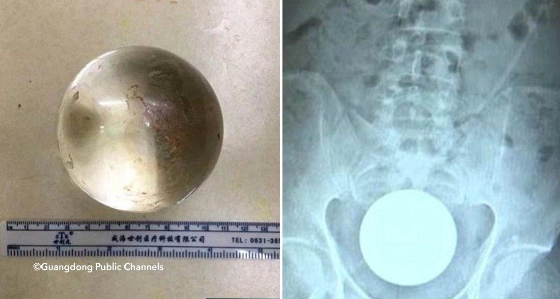 template coverpanza - Un hombre tuvo que pasar por una situación vergonzosa al llegar al hospital, tenían que sacarle un objeto de 8 centímetros de su recto