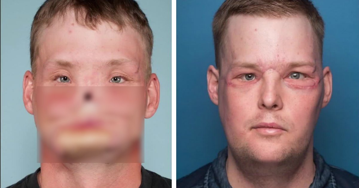 untitled 1 117 - He Tried To End His Own Life But Was Left With A Shattered Face Until A Landmark Facial Transplant Gave Him New Hope