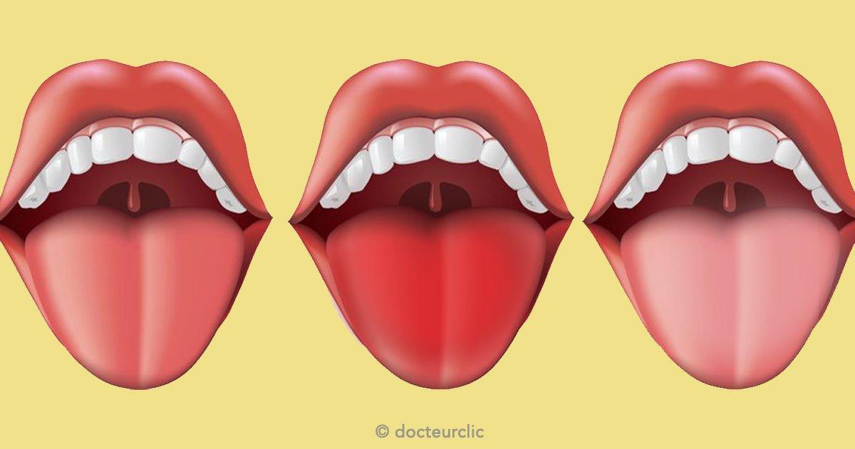 untitled 1 119 - El color de tu lengua puede revelar más de lo que imaginas sobre tu salud
