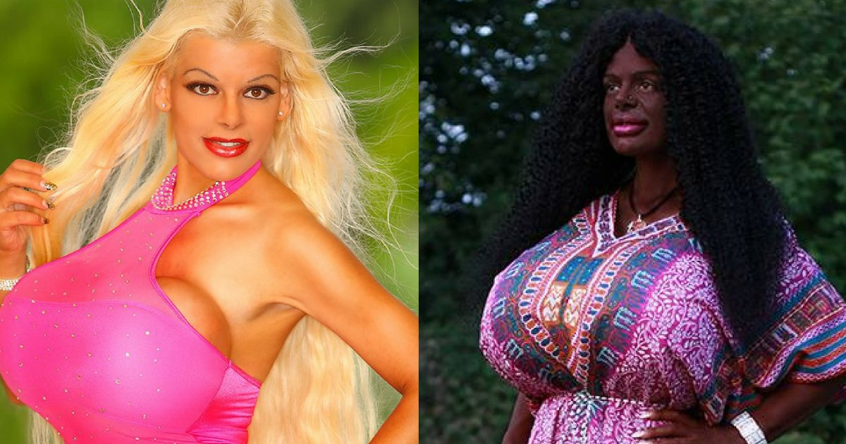 untitled 1 125 - This Woman Changed Her Skin Color From White To Black