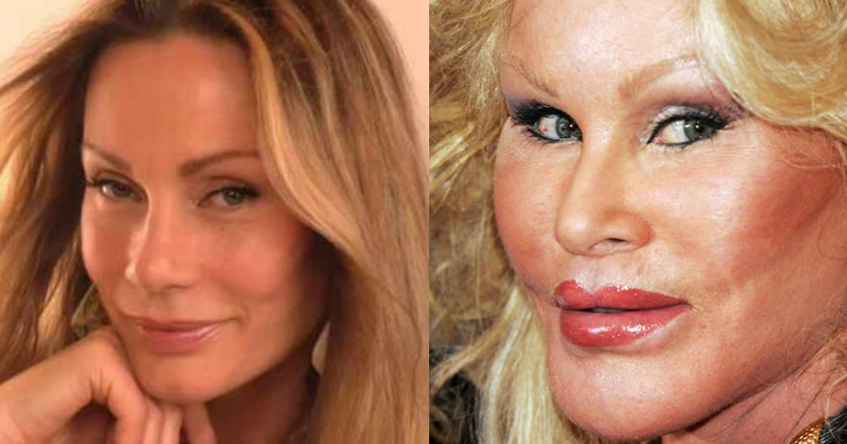 untitled 1 132.jpg?resize=1200,630 - These Extreme Plastic Surgery Cases Will Leave You More Horrified Than Impressed