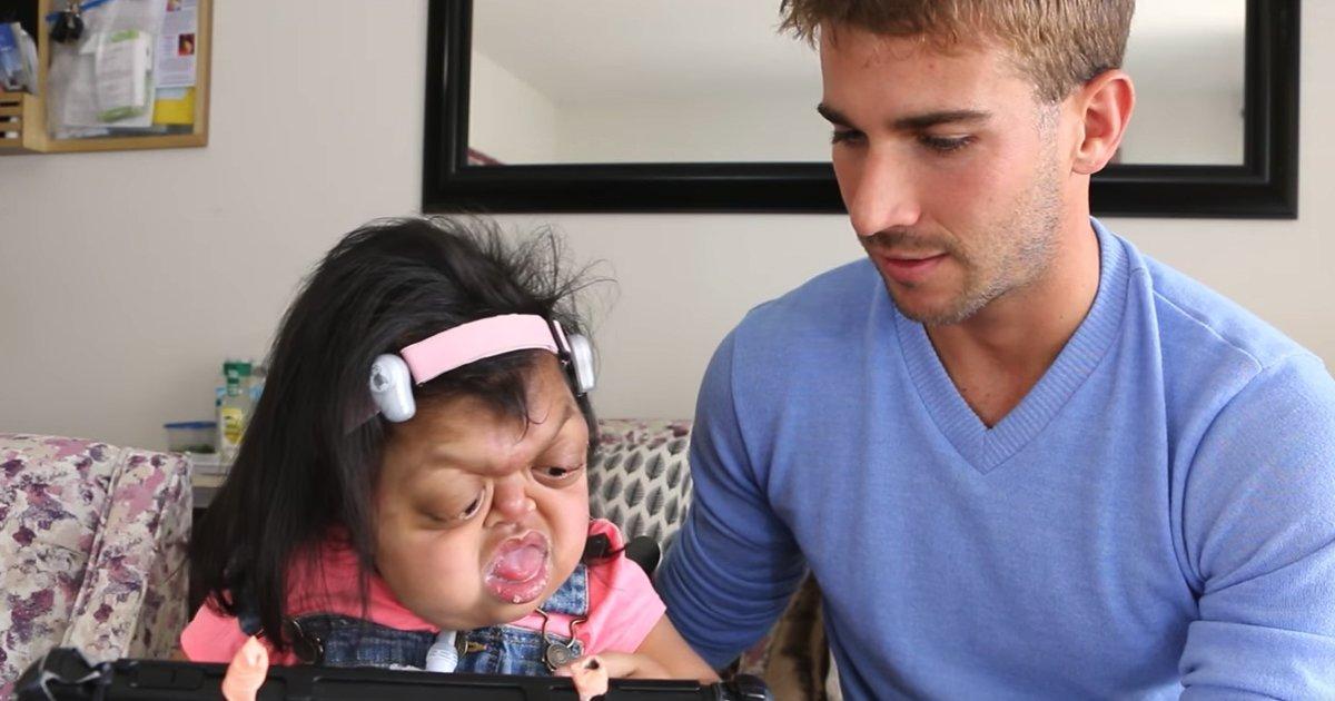 untitled 1 153.jpg?resize=300,169 - Essa criança adorável não deixa suas deformidades físicas a impedirem de ser doce e amável
