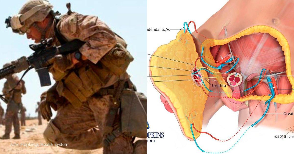 1 tem.png?resize=1200,630 - El primer transplante de pene del mundo se le realizó a un soldado estadounidense