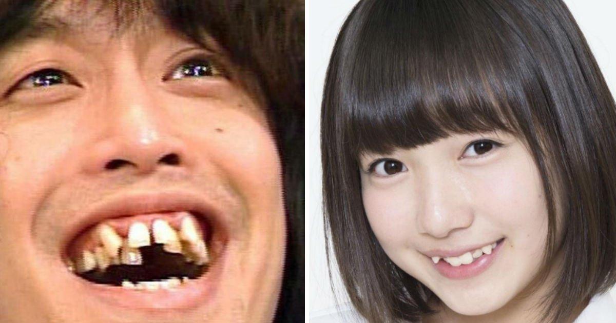 """132 1.jpg?resize=412,232 - """"일본인들이 '덧니' 많은 이유는 해산물 과다섭취?"""" 일본인들이 치아가 고르지 못한 이유 3가지"""