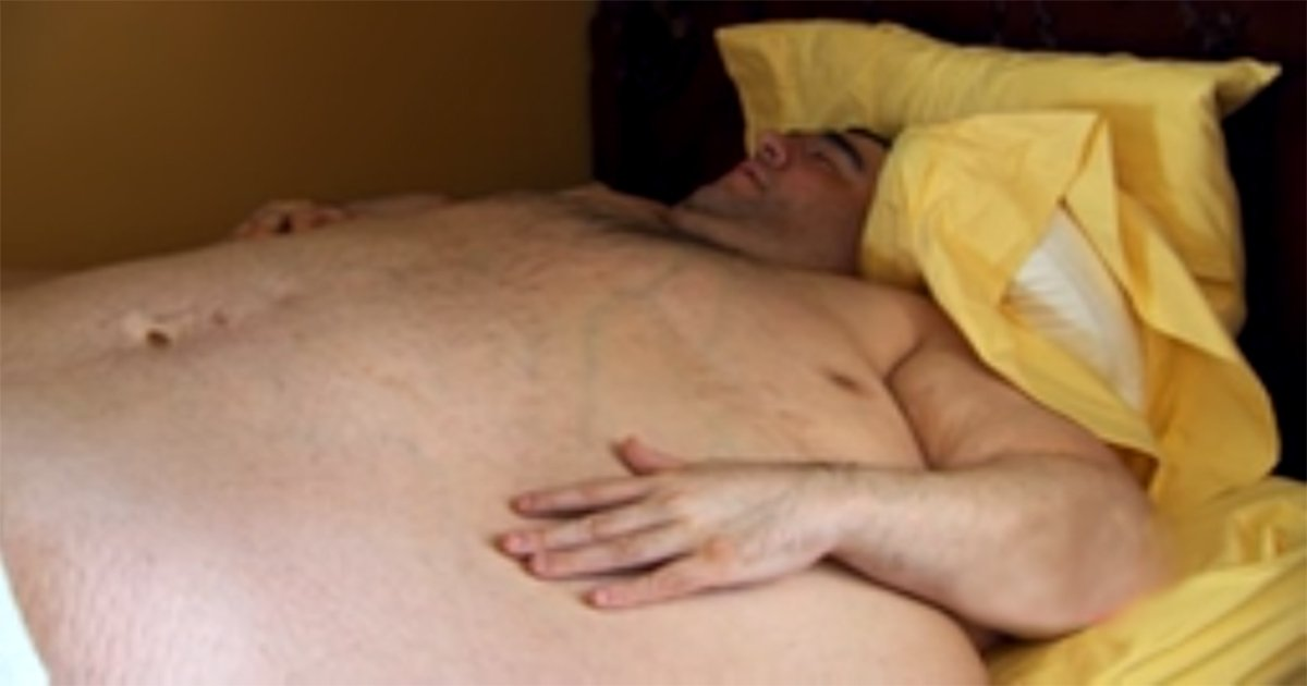 13ec8da8eba998e384b9.jpg?resize=412,232 - Severely Overweight Guy Depends On His Fiancée To Bring Him Food And Clean Him Up