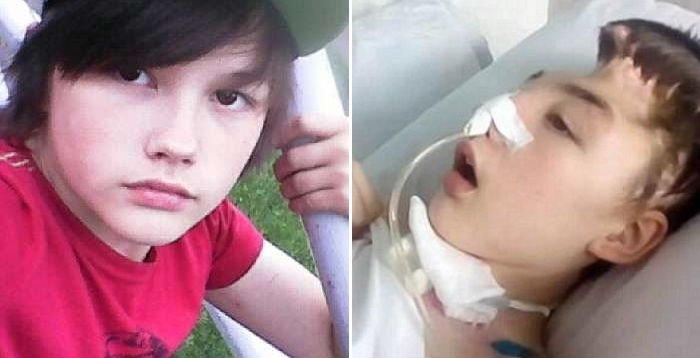 2b4414llkviinxc5048o.jpg?resize=1200,630 - お母さんを助けるために「レイプ」に対抗して「昏睡状態」陥った15歳の少年