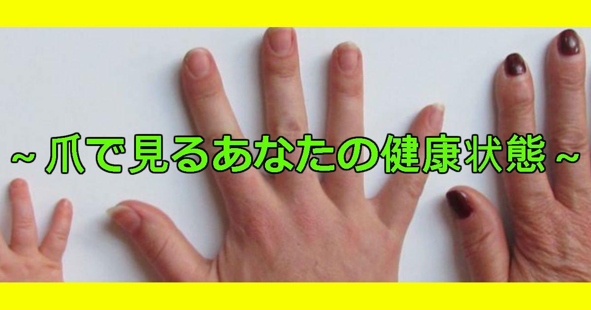 3 323 - 爪で診断する病気5種