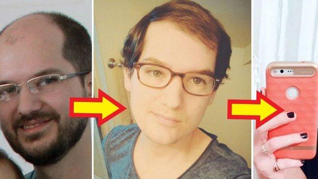 32415 1.jpg?resize=1200,630 - 「薄毛」のせいで「女性ホルモン」投与した男性の不思議な変化【写真8枚】