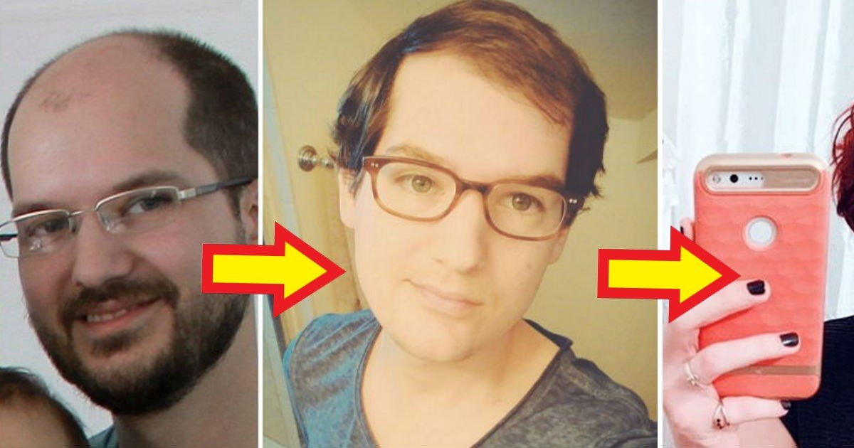 32415.jpg?resize=1200,630 - '대머리' 때문에 '여성호르몬' 맞은 남자의 놀라운 변화 (사진 8)