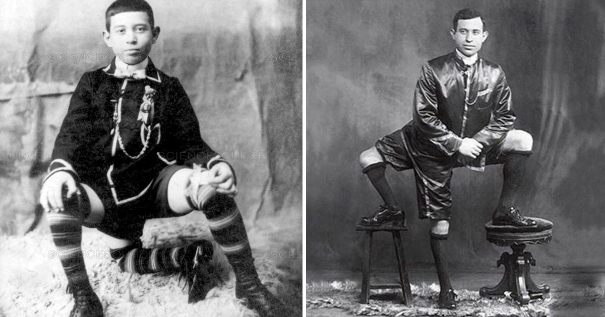 3pier.png?resize=300,169 - El hombre que nació con 3 piernas, después de las burlas alcanzó el éxito